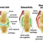 Inflammatory-Arthritis
